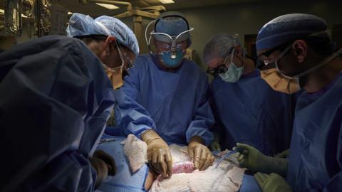 【有片】美研究團隊將豬腎移植人體 成功運作無排斥反應